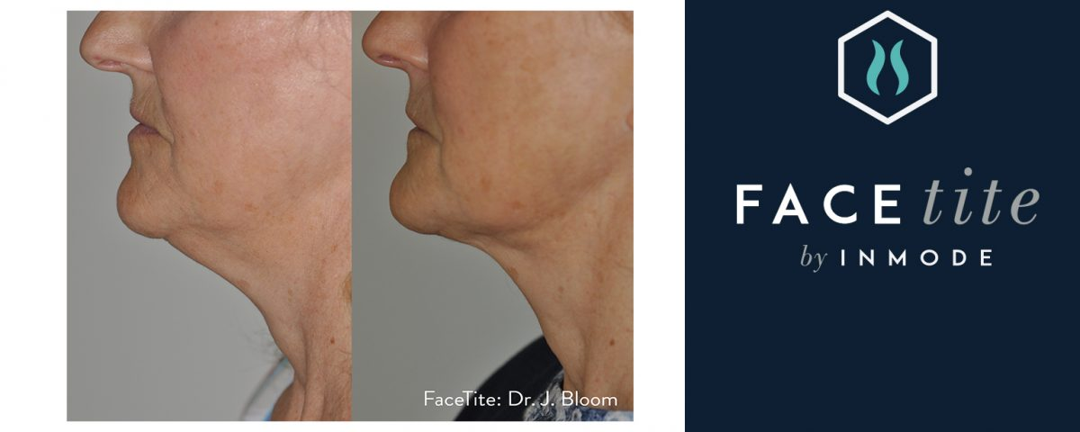 BodyTite and FaceTite: Achieve Surgical Body Contouring Results