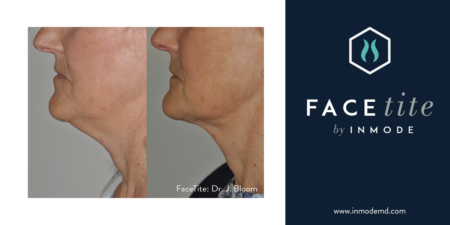 BodyTite and FaceTite: Achieve Surgical Body Contouring
