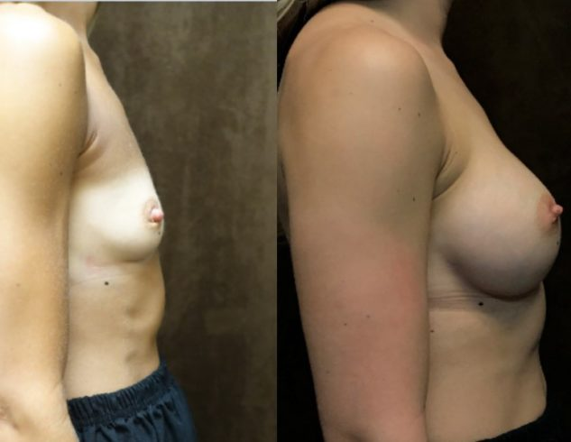 ARoss breast aug before after RGA